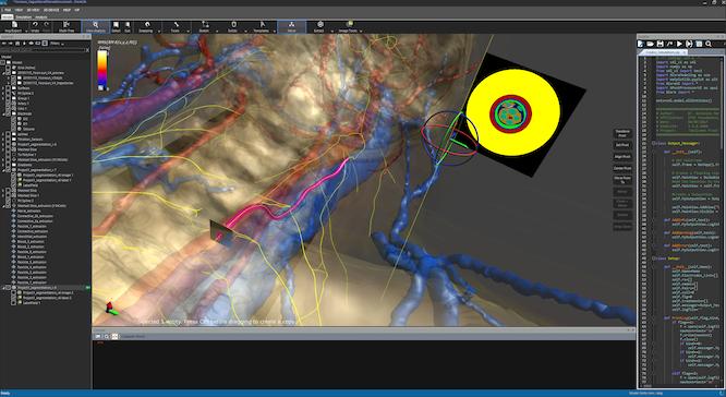 Sim4Life Major Release V5 0 » zurich med tech